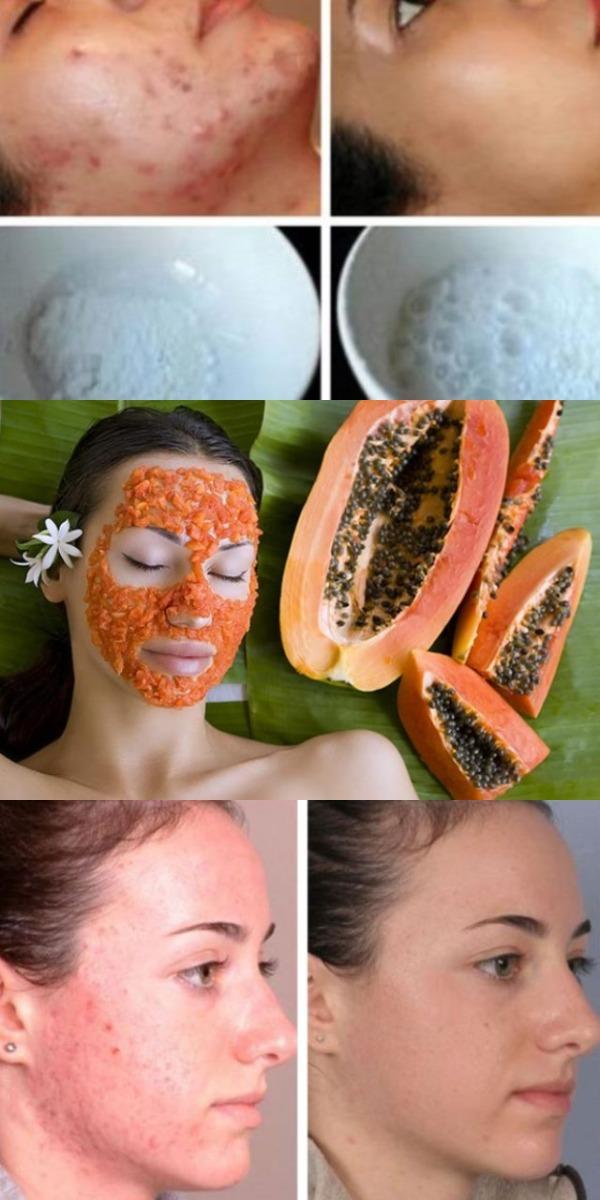 Эта маска для лица волшебным образом удаляет пятна, шрамы от угревой сыпи и морщины