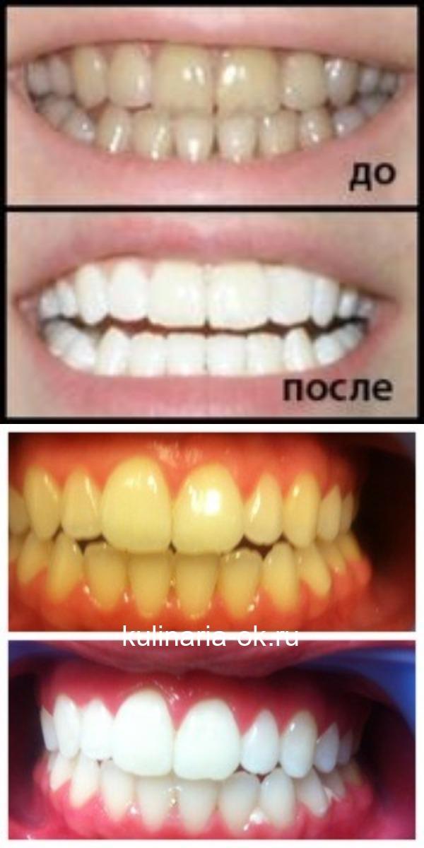 4 простых средства отбелят Ваши зубы за 5 минут! Эффект невероятный!