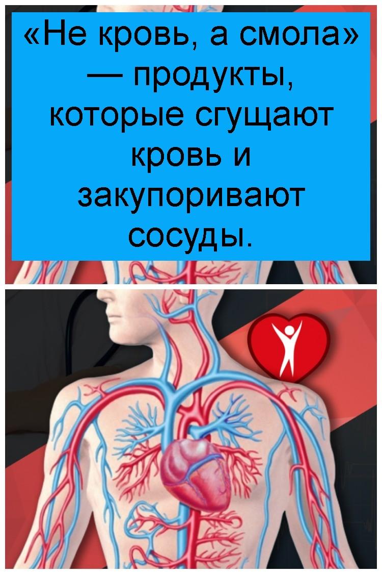 «Не кровь, а смола» — продукты, которые сгущают кровь и закупоривают сосуды 4