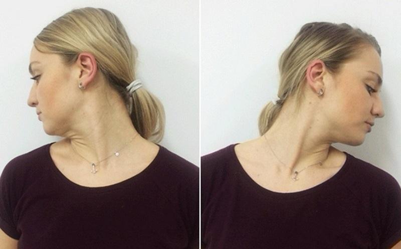 Чтобы подтянуть область вокруг рта, берешь пробку, кладешь между… Разбуди неработающие мышцы 12