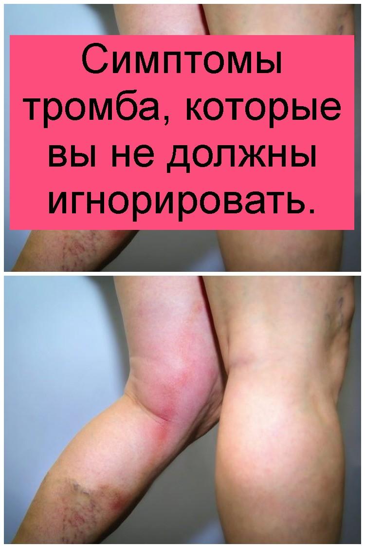 Симптомы тромба, которые вы не должны игнорировать 4