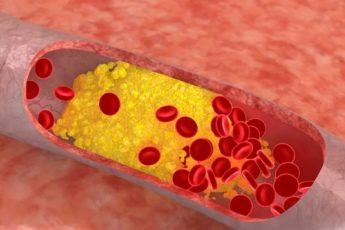 Естественные способы уменьшения уровня плохого холестерина в течение 4 дней 1